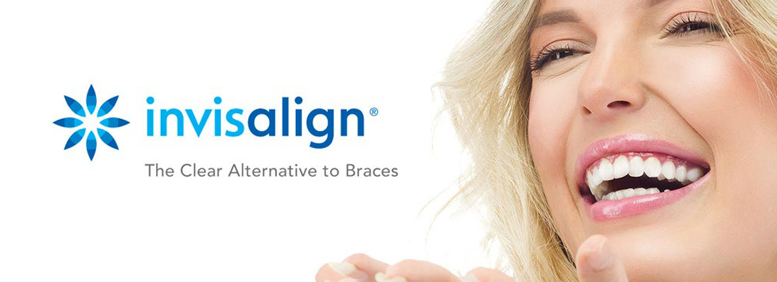 South Holland & Burr Ridge Illinois Invisalign Dentistry